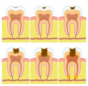 ilustrace postupu kazu zubem. zubní lékař, Český Krumlov