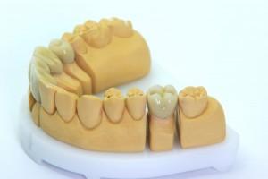 model spodní lidské čelisti. zubní lékař, Český Krumlov